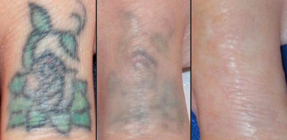 Удаление татуировки лазером: особенности и результаты процедуры